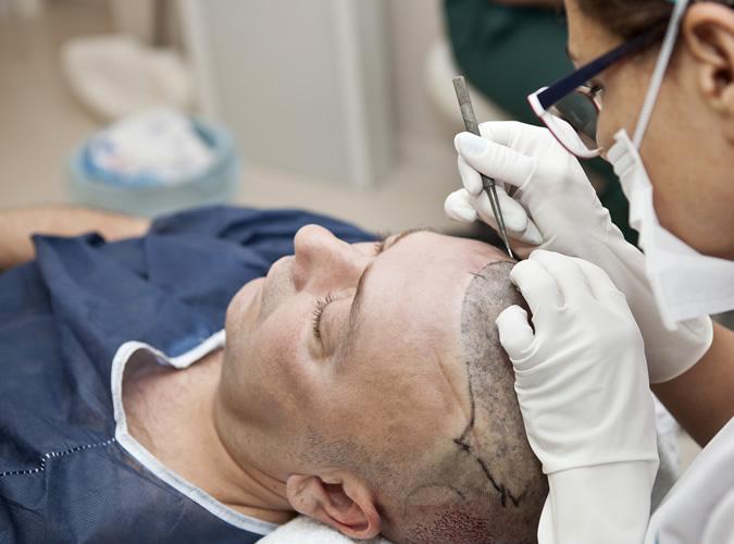 Процедура пересадки волос у мужчин