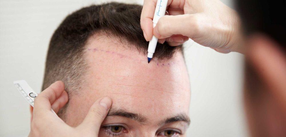 Пересадка волос у мужчин. Цена и отзывы