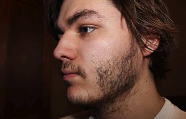 рост бороды в молодом возрасте