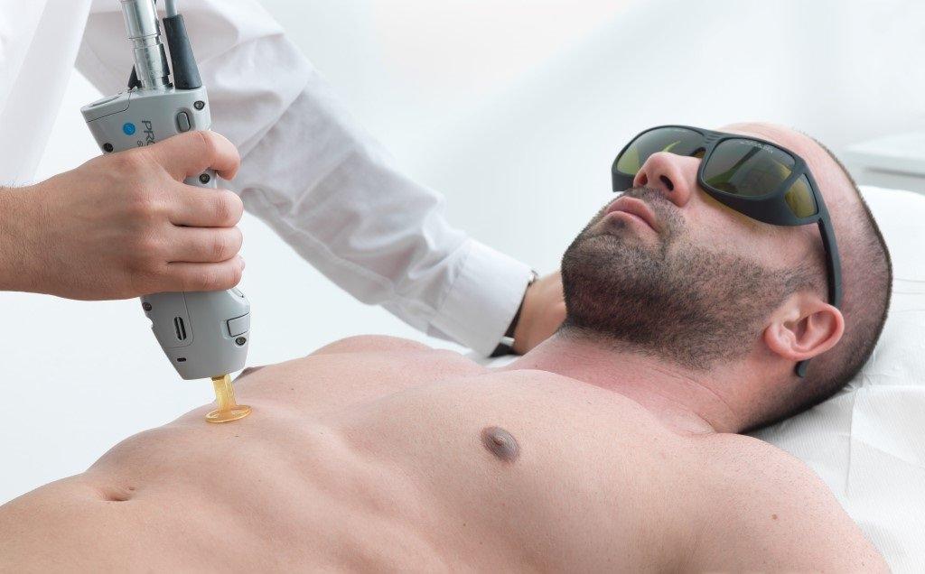 Как проводится лазерная эпиляция