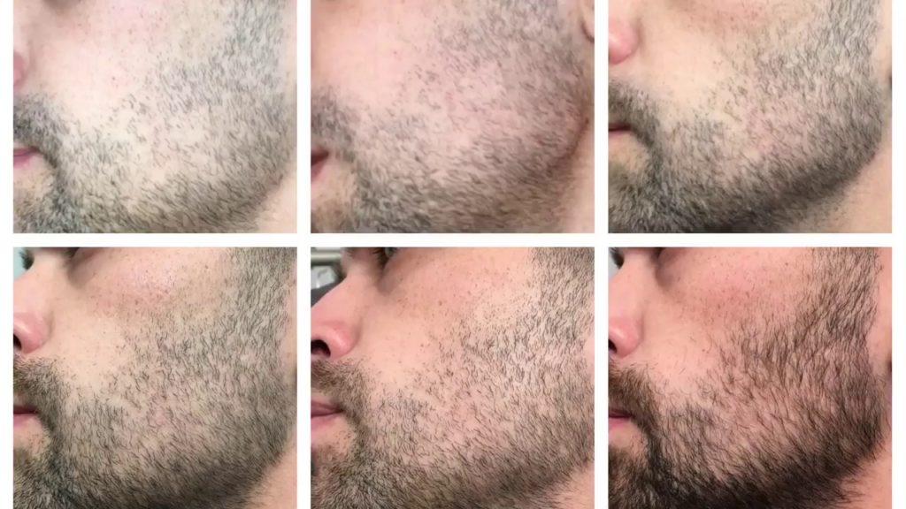 Стадии роста бороды в картинках
