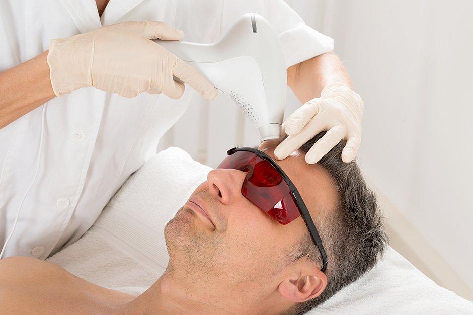 Лазерная эпиляция бровей у мужчин